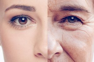 Woman Split Face Sun Damage
