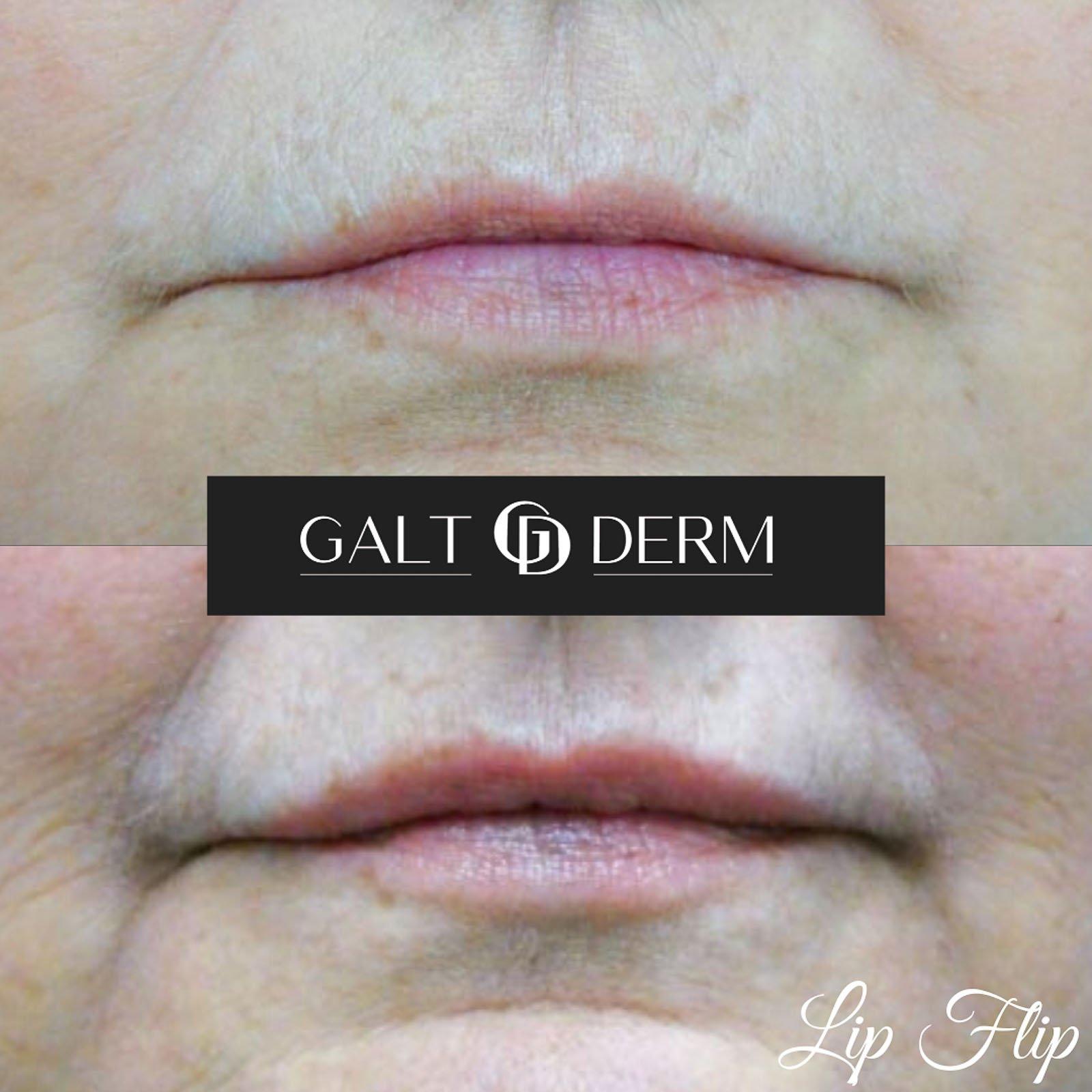 Botox Lip Flip in Fort Lauderdale Fl 3