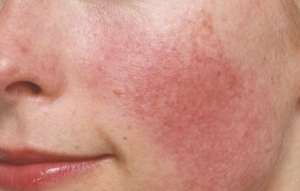 Top 6 Reasons Why Your Skin Is Red And Common Rosacea Misdiagnosis 10