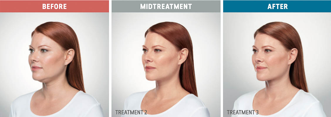 Kybella Treatment In Fort Lauderdale 13