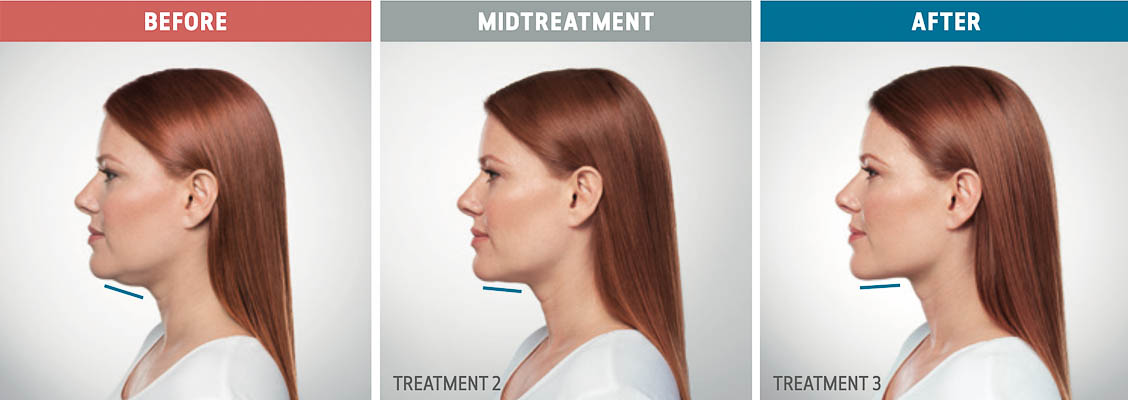 Kybella Treatment In Fort Lauderdale 12