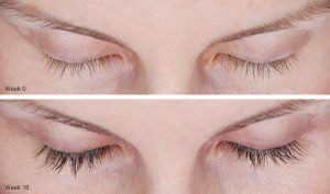 Thin Eyelash Treatment In Fort Lauderdale 3