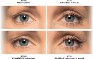 Thin Eyelash Treatment In Fort Lauderdale 6