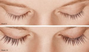 Thin Eyelash Treatment In Fort Lauderdale 4