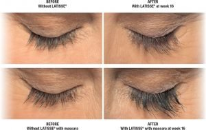 Thin Eyelash Treatment In Fort Lauderdale 7
