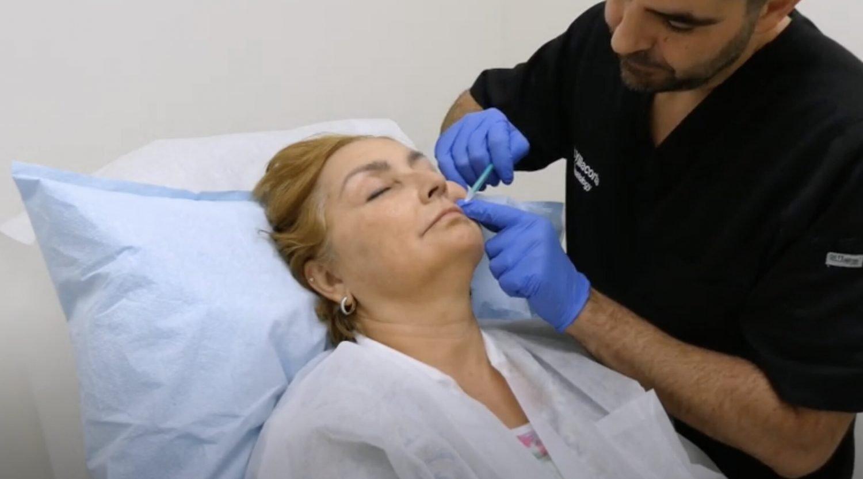 Botox Lip Flip in Fort Lauderdale Fl 2