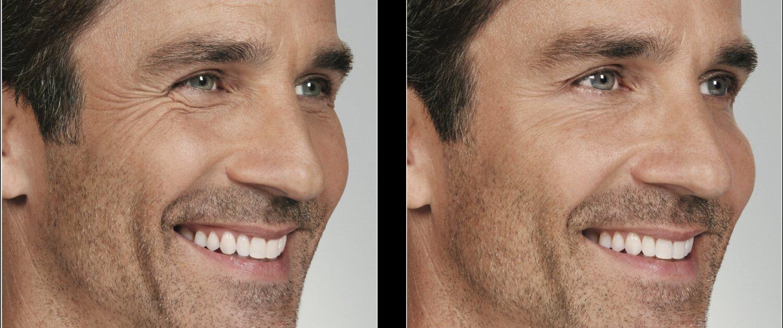 Botox Fort Lauderdale FL - Galt Dermatology