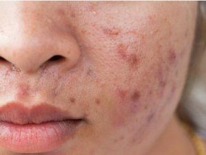 The Maskne Epidemic: What's Really Causing the Acne Around Your Mouth? 1