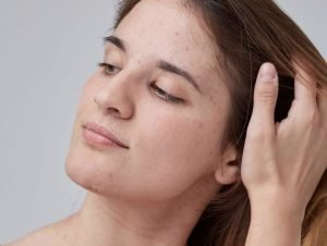 The Anti-Acne Diet - What the Latest Research Shows 2