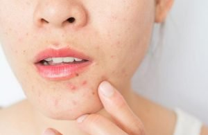 5 Professional Treatments to Fade Acne Scars 2