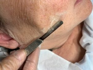 The Truth on Dermaplaning: 5 Misconceptions About the 'Cutting-Edge' Treatment 5