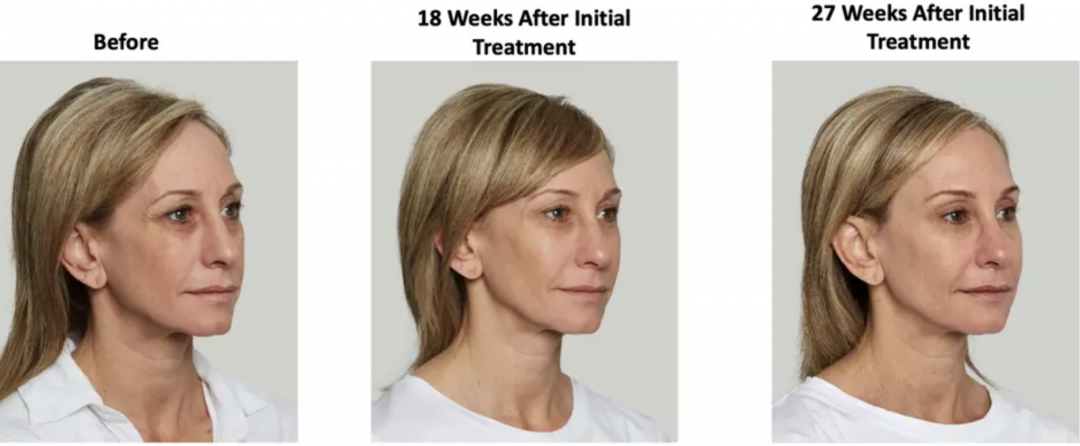 Boosting Collagen Naturally with Sculptra
