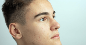 Teen with Acne
